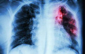 Verem (Tüberkiloz) hastalığının belirtileri neler?